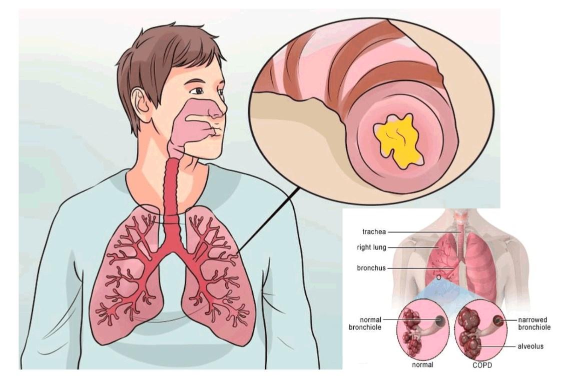 как лечить трахейный кашель - 14
